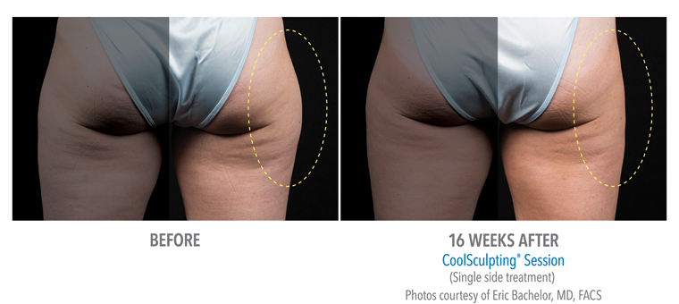 Weight loss for menopause photo 1