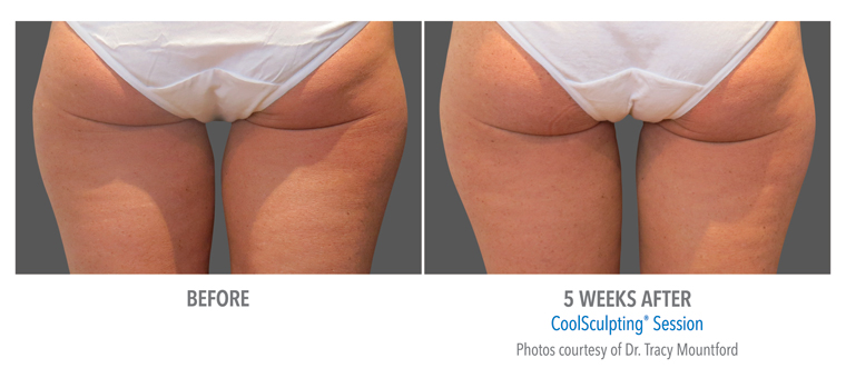 Inner And Outer Thighs Coolsculpting 174