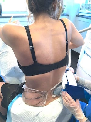 CoolSculpting Montreal Love Handles