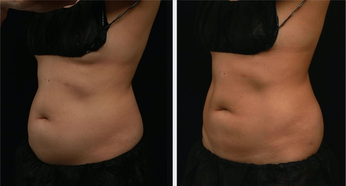CoolSculpting Montreal